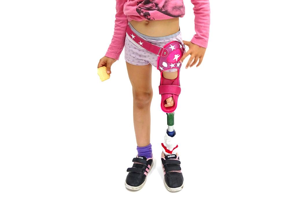 Orthotec Orthopädietechnik Orthoprothesen Massanfertiung Oberschenkel Kind