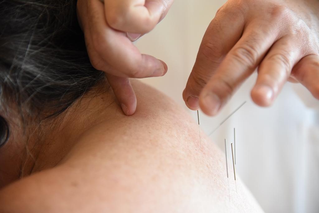 Akupunktur Zentrum für Schmerzmedizin