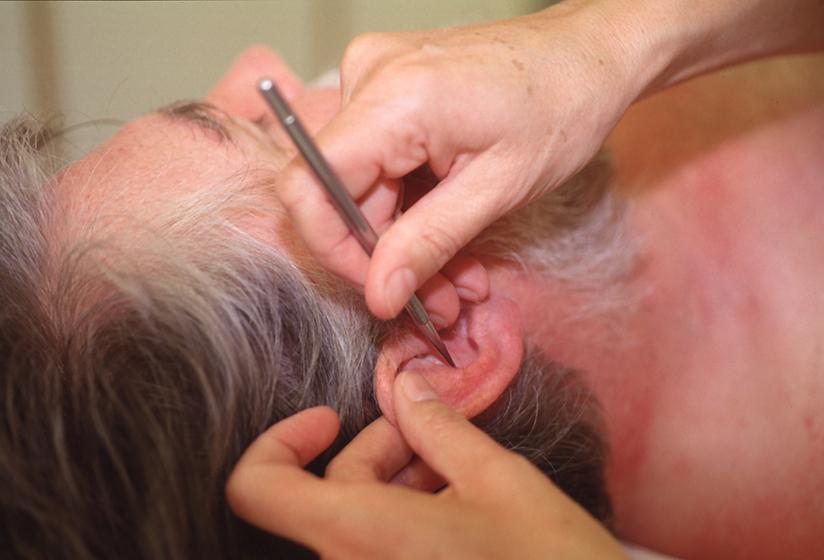 Akupunktur in der Physikalischen Therapie