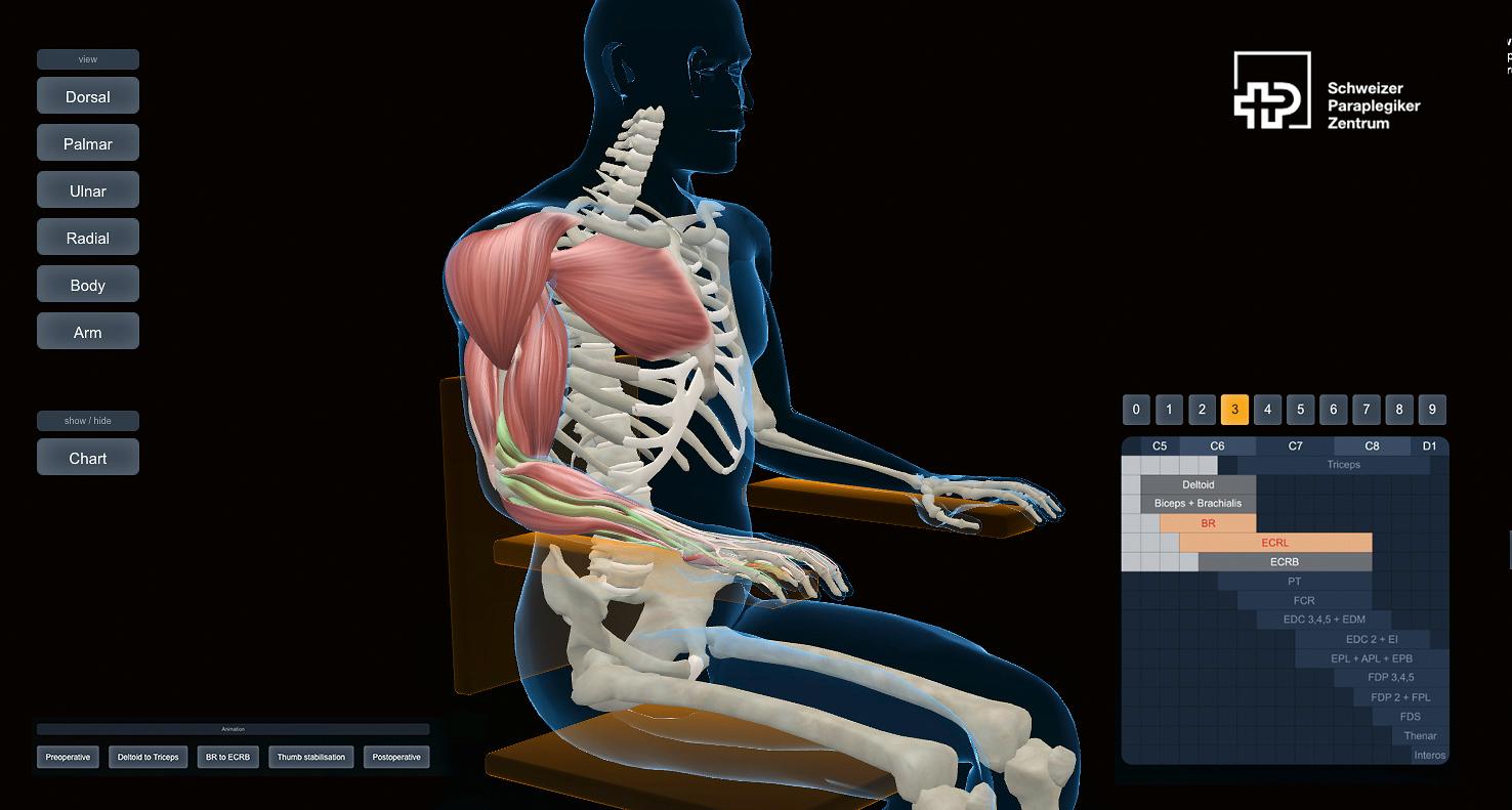 Opération sur un mannequin 3D : selon le niveau lésionnel, on déplace tel ou tel muscle, tendon ou nerf. Une animation en 3D permet au patient de suivre les différentes étapes de l'opération.