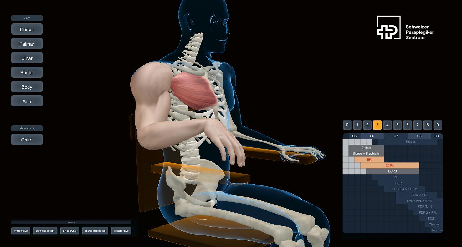 Avant l'opération : main inerte et dénuée de force.