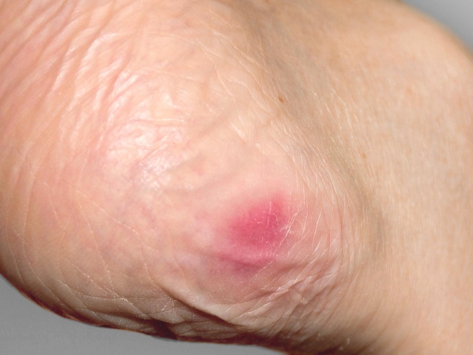 Gerötete Haut -  Dekubitus Grad 1