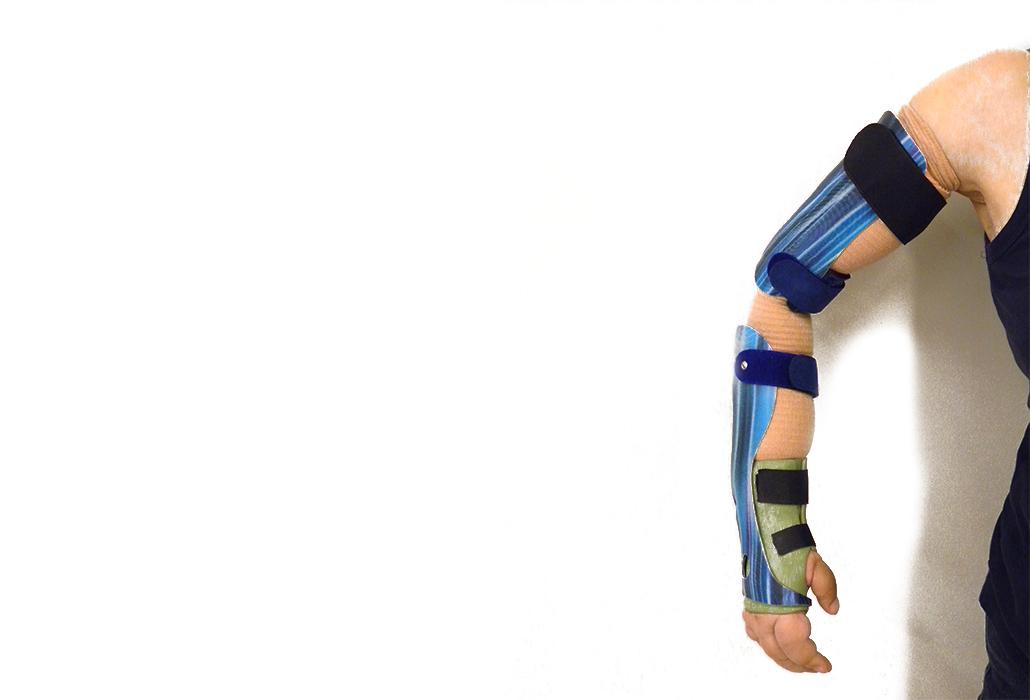 Orthotec Orthopädietechnik Oberarmorthesen Ellbogenorthese Massanfertigung Stabilisierung