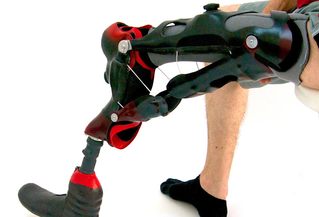 Orthotec Orthopädietechnik Orthoprothesen Massanfertiung Umdrehplastik am Bein