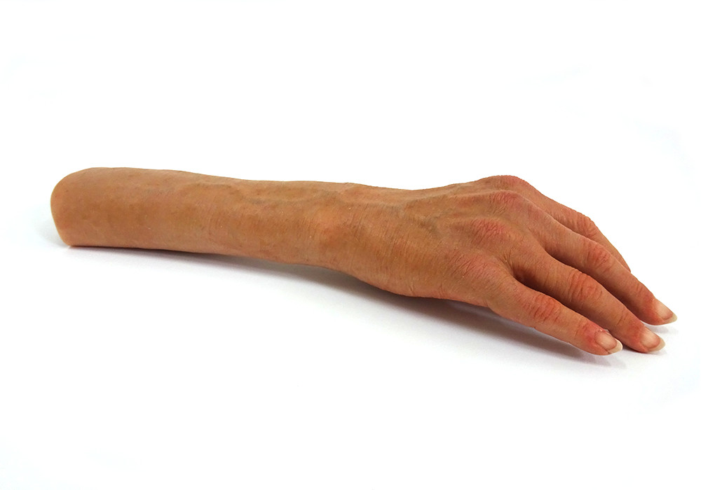 Orthotec Orthopädietechnik Prothesen Massanfertiung Handprohtesen Schmuckhand Silikon
