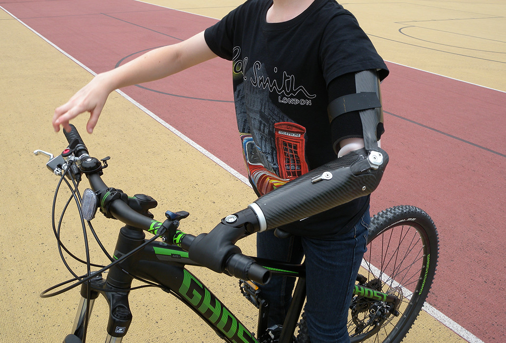 Orthotec Orthopädietechnik Prothesen Unterarmprothesen Massanfertigung Fahrradprothese