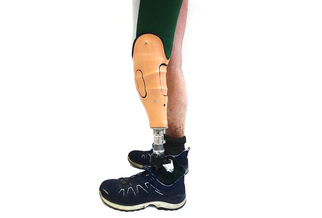 Orthotec Orthopädietechnik Prothesen Unterschenkelprothesen Massanfertiung Boa Closure System