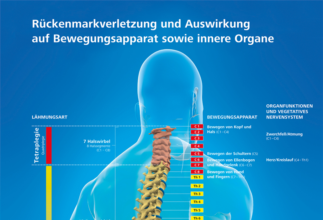 Lähmungshöhe Tetraplegie