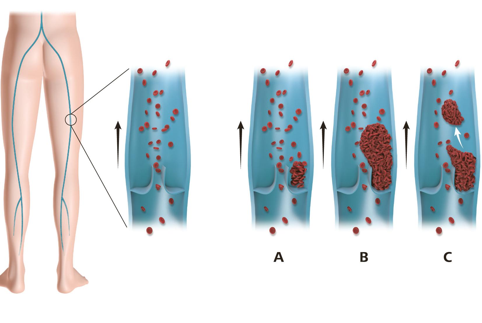 venentrombosen